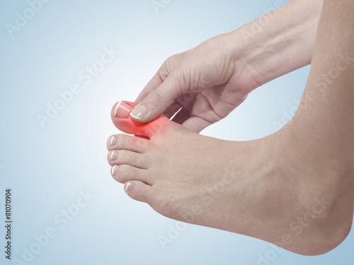 Leinwandbild Motiv Painful and inflamed foot around the big toe area.