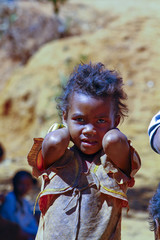 Poverty, portrait of a poor little African girl lost in deep tho