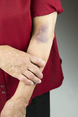 Large hematoma on human arm