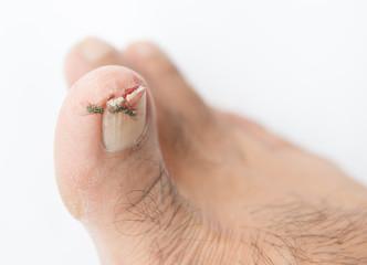 Broken toenail on white background