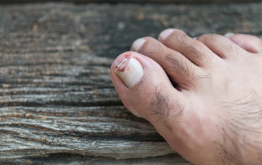 Broken toenail on wood background