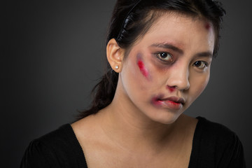 Asian woman victim of domestic abuse