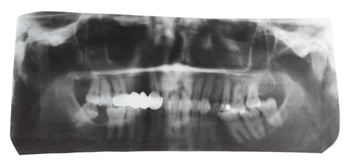 dental X-ray picture of human jaws isolated