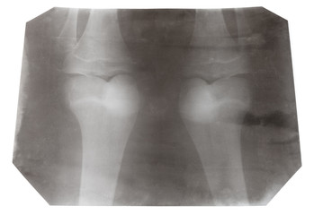 X-ray picture of two human knee-joints isolated