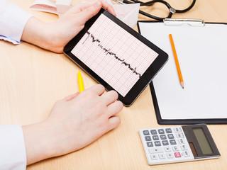 medic checks patient electrocardiogram