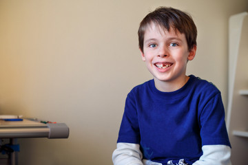 Portrait of cute little boy who lost his milk tooth