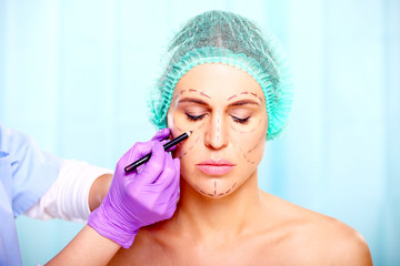 marking on face of beautiful woman, plastic surgery