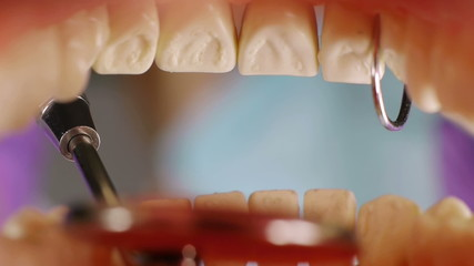 Teeth Inside Mouth Cleanup