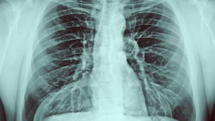 Chest x-ray and gases.