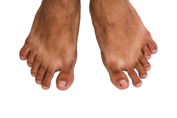 Foot with twelve toe, medical phenomenon