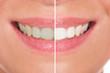 Close-up Of Woman Teeth