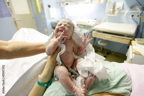 Vernix covered newborn after delivery - 81867303