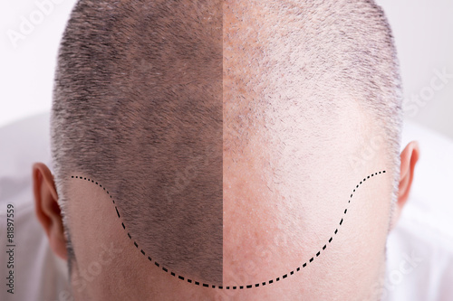 Hair Loss - Before and After - 81897559