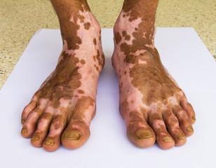 Scar bare feet
