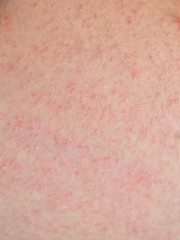 allergic rash dermatitis skin of patient