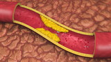 Artery With Clog Animation. Clogged artery shown with a cut out section displaying fat deposits and forming a clot. White Platelets in Bloodstream. poster