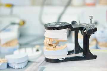 Articulator with dental prosthesis model