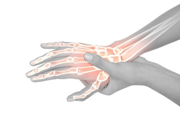 Highlighted bones of woman with hand pain