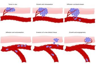 metastasi: formazione a distanza di un cancro
