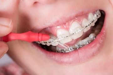 Mund mit Zahnklammer