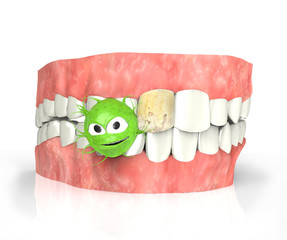 teeth with caries and bacteria