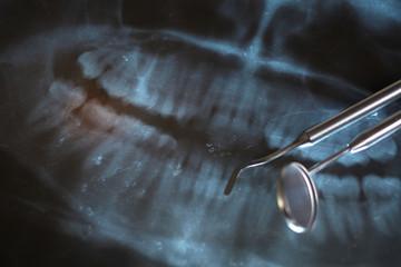 Dental x-ray and dental mirror