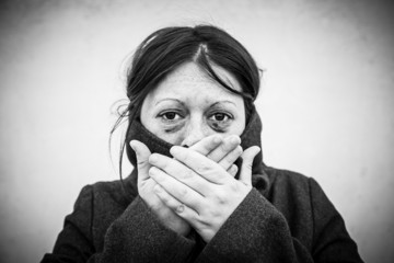Battered woman with eyes damaged