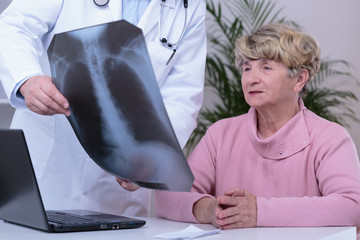 Doctor showing patient chest x-ray
