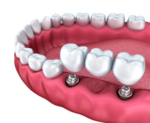 A close-up view of lower teeth and dental implants isolated