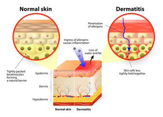 dermatitis or eczema