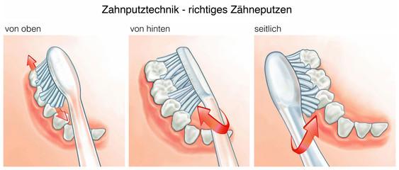 Zahnputztechnik.Richtiges Zähneputzen