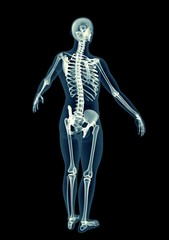 x-ray image of a man isolated on black