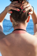 Young woman showing neck sunburn on the beach in summer