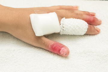 injured finger wrapped in a gauze bandage