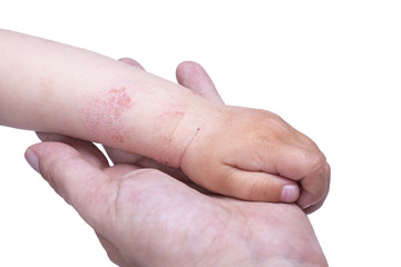 Eczema on the kid's hand