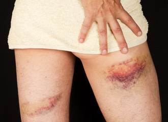 Injured thigh of male person.