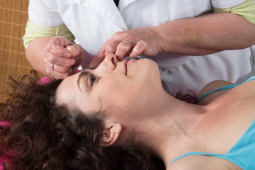 Acupuncturist prepares to tap needle on female's face
