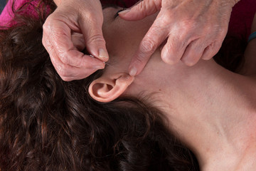 Close-up of an acupuncture needle on an ear.