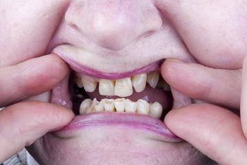 Bad defective teeth