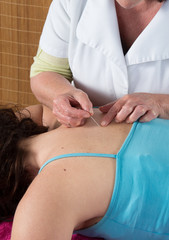 woman receiving an acupuncture treatment in a health spa