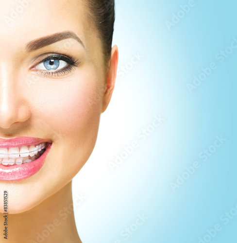 Beautiful woman smiling. Closeup ceramic braces on teeth - 83851529