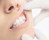Denti bianchi visita alle gengive arrossate