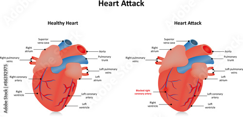 Differentiating between cardiac pain and stomach gas pain golf for differentiating between cardiac pain and stomach gas pain ccuart Image collections