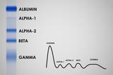 Blood serum protein electrophoresis electrophoretogram poster