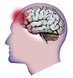 Cervello e mal di testa