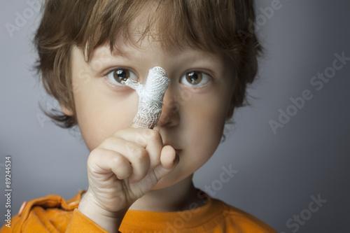 wound, focus on finger