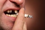 Fototapety Bad teeth smoker