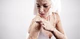 Cracked skin treatment