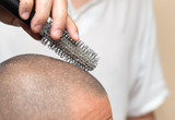 dandruff on the comb. close poster