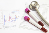 Form the results of biochemistry blood tests with stereomicrosco poster